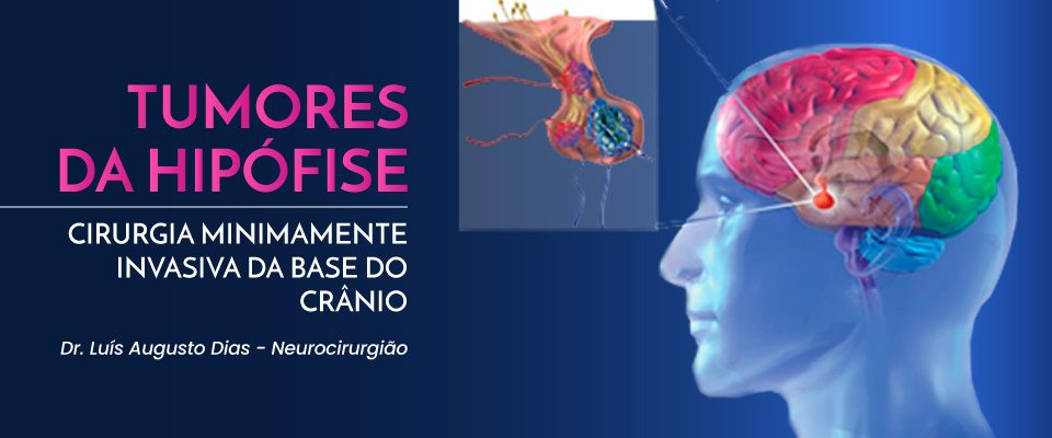 hipófise-dr-luis-augusto-dias